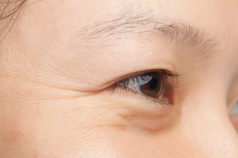 Which Wrinkle Fighting Treatment Is Best For Me?